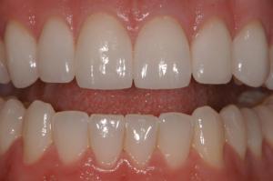Los Angeles Dental Implants