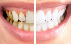 cosmetic-dentistry-can-do-for-you-2